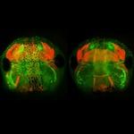 Through the Looking-Glass: Tissue Regeneration in Xenopus Tadpoles